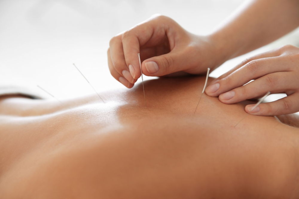 Medicare covers acupuncture as a way to treat low back pain